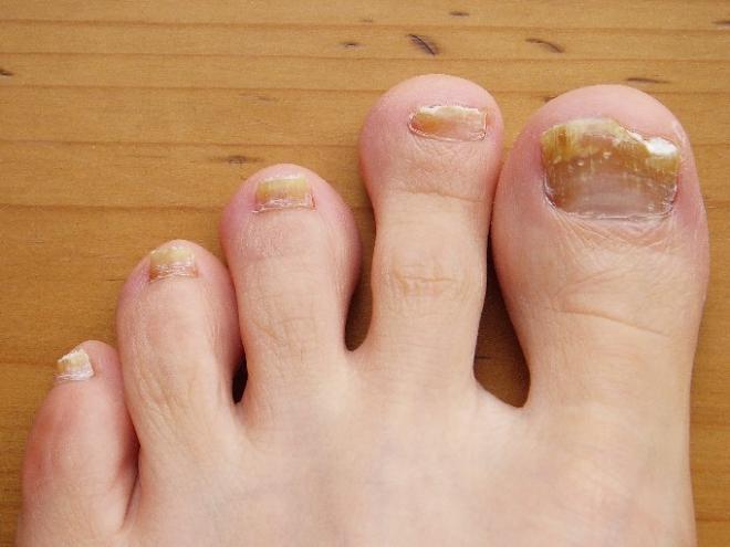 grzybica-paznokcia-zakazony-paznokiec