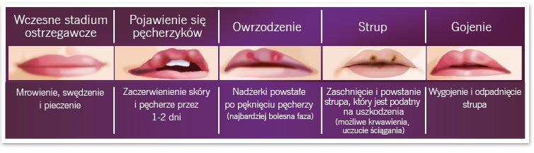 Jak rozwija się opryszczka. Źródło: urgo.pl