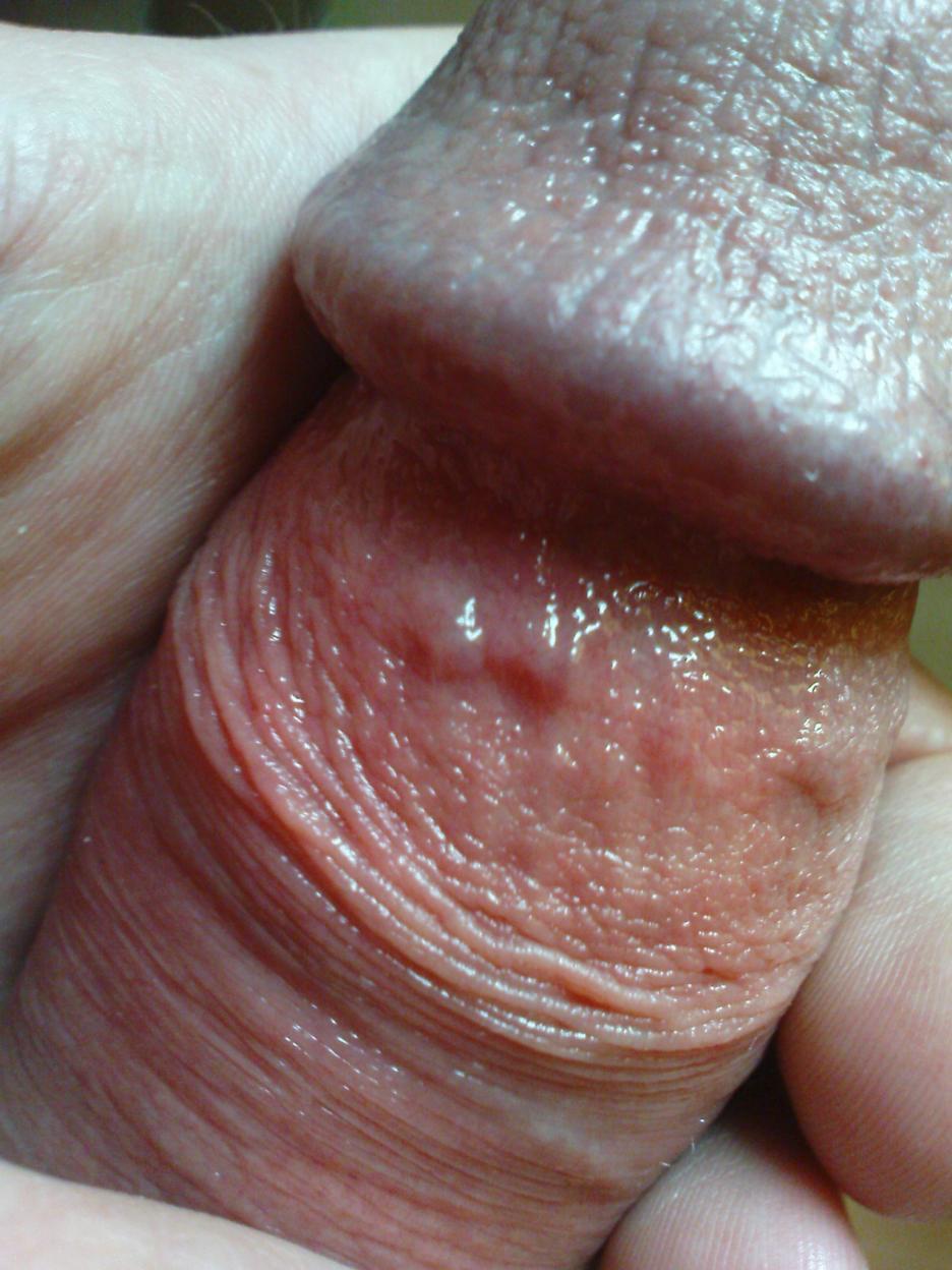 Widoczne dwa małe guzki - o niczym jeszcze nie świadczą i należy je skonsultować z lekarzem