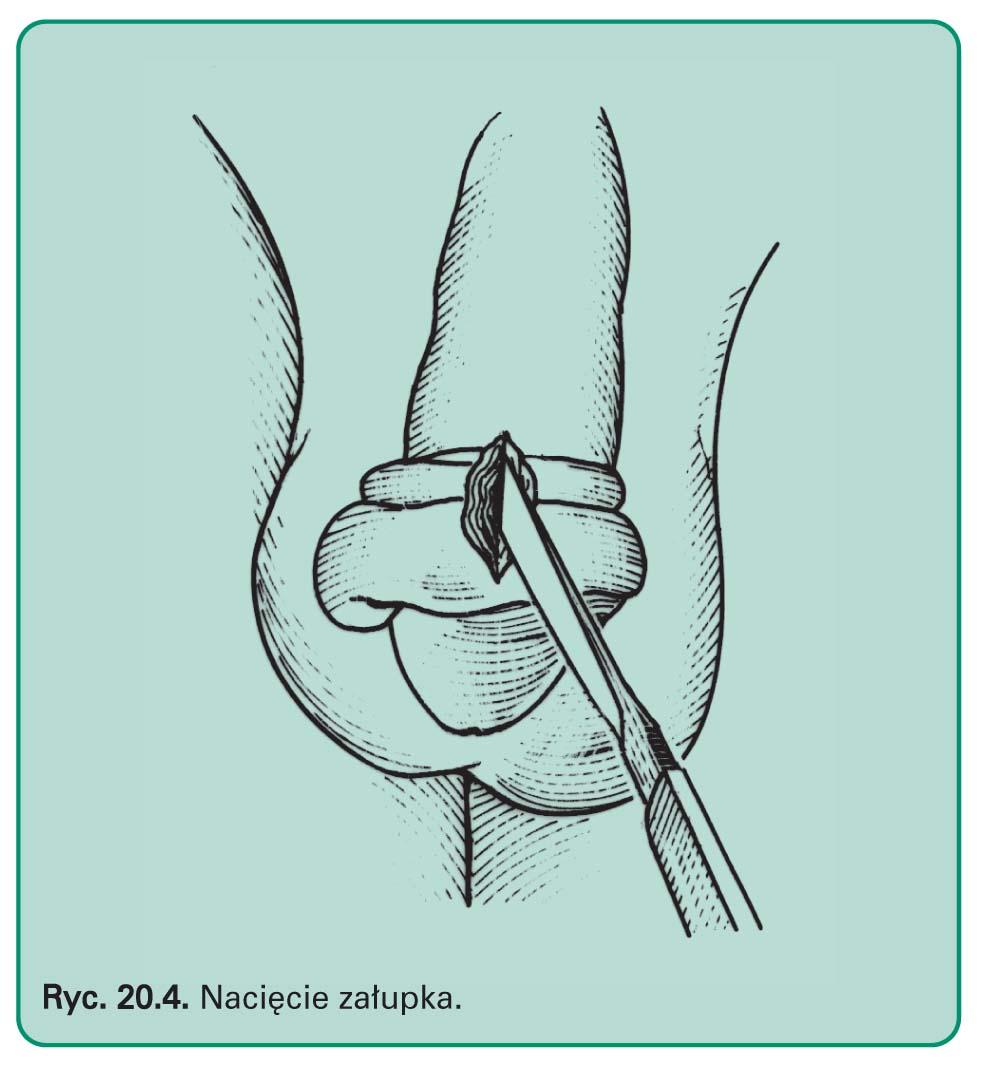 Załupek można łatwo usunąć w trakcie prostego zabiegu operacyjnego