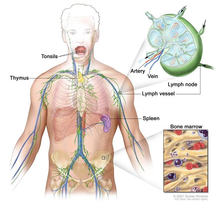Chłoniak Hodgkina Leczenie dorosłych (PDQ®)